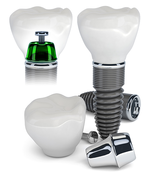 Hell's Kitchen Dental Implants